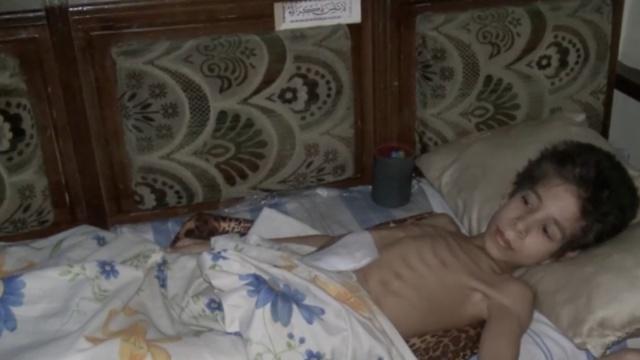 喋血孤城!疾病饥饿笼罩下的阿勒颇