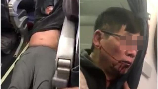 美联航暴力驱赶华裔乘客下机全回顾