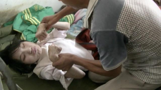 脑瘫女被母遗弃,父亲捡回照顾17年