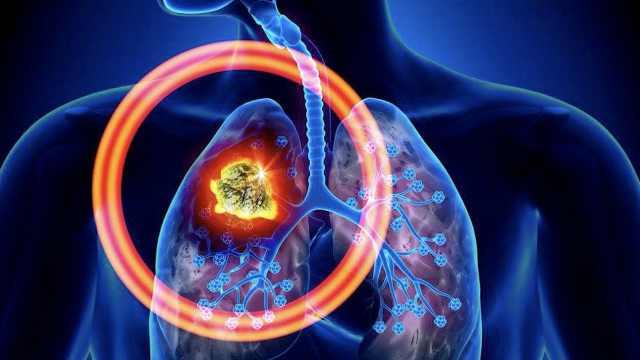 呼吸都在接触外界,如何预防肺癌?