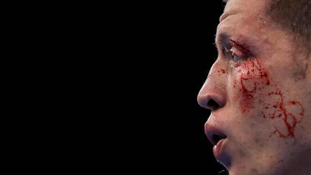 邹市明或留后遗症,拳击到底多危险?
