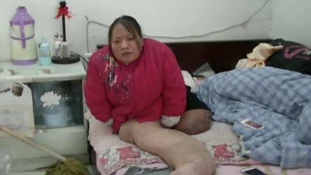 她患怪病双腿疯长,怕拖累丈夫离婚