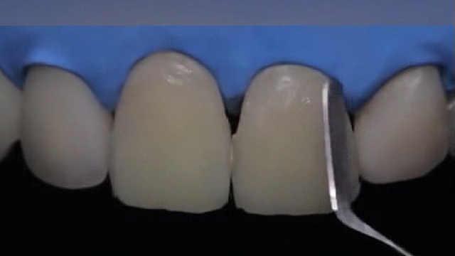 看看全新的补牙技术