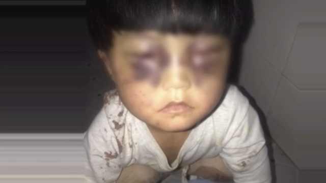 女童遭父虐待被解救,今日康复出院