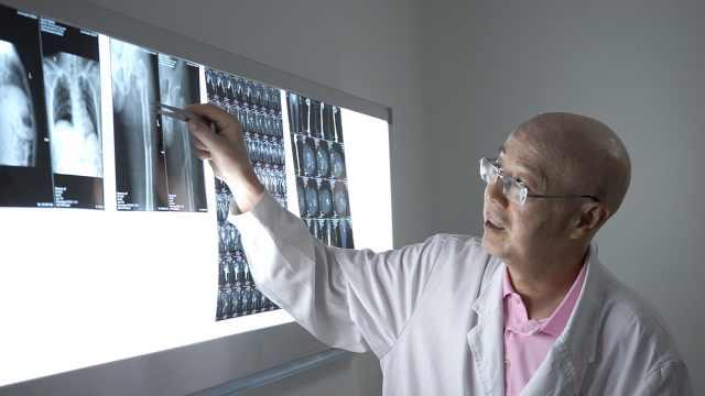 医生自己患癌症,仍坚守岗位治病人