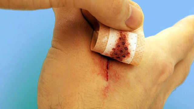 看看哪些伤口不能使用创可贴
