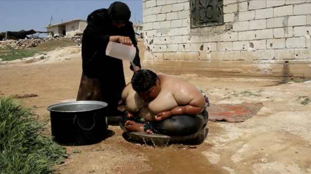 叙利亚男孩15岁300斤,却没钱医治