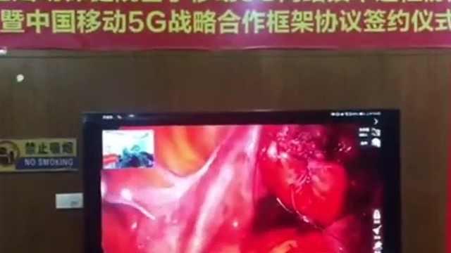 广西妇幼保健院开展5G远程协同手术