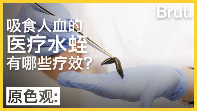 医疗水蛭有哪些疗效?