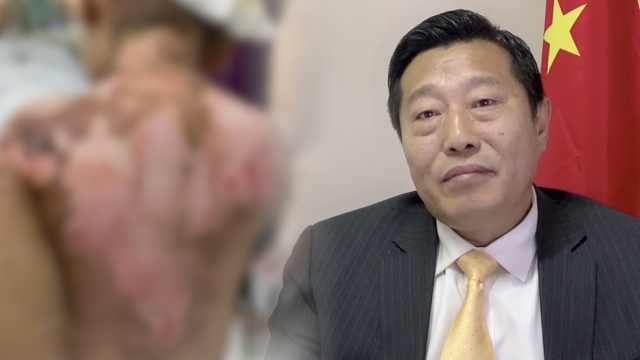 抚顺6岁被虐女童律师披露案件细节:被逼脱光用身体掐灭烟头