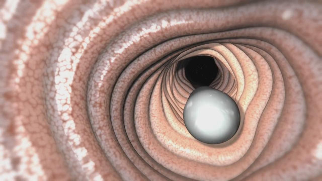 造福亿万胃病患者的胃镜机器人