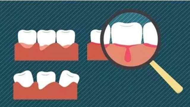 牙龈出血非小事,可能是乙肝前兆!
