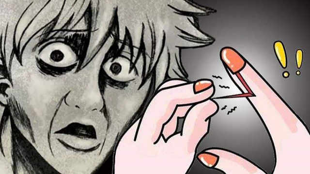 你的指甲周围为什么会长倒刺?