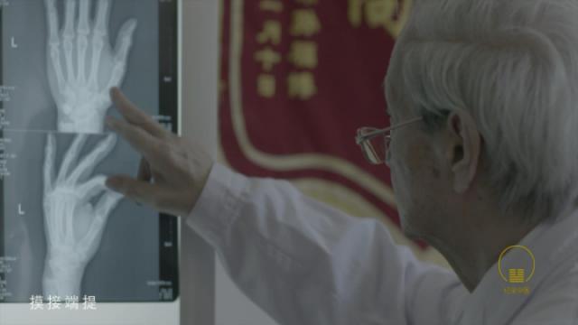 国医大师刘柏龄|手法者正骨之首务