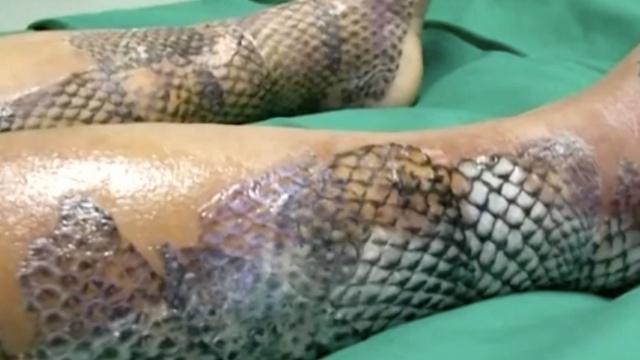 巴西医院尝试用鱼皮治疗烧伤