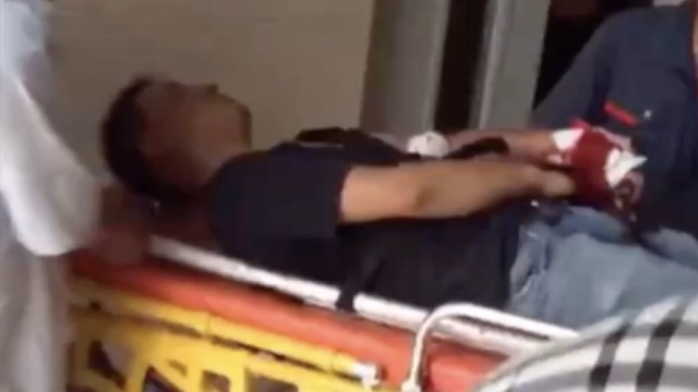 20多岁小伙修电梯受伤,大拇指没了