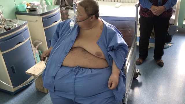 360斤胖子入院减重,42年头回进澡堂