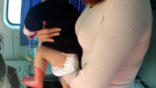 情况紧急!10月男婴列车上脚被烫伤