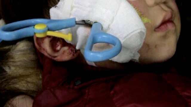 2岁幼童玩剪刀摔倒,插进脸部6公分
