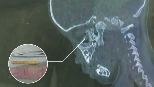 2岁男童吃饭摔倒,筷子从嘴直插眼眶