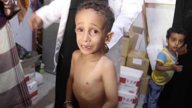 悲剧!也门内战把孩子变成了这样