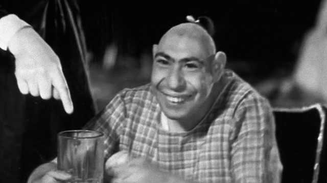 20世纪最著名的畸形演员