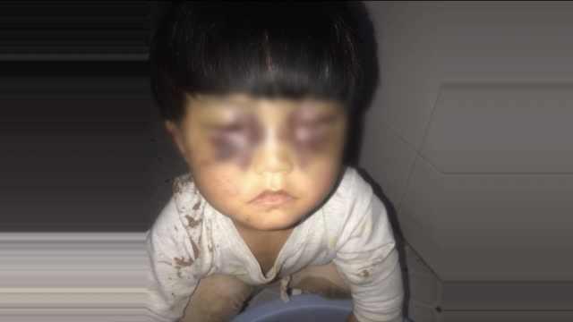 4岁娃遭父虐打浑身是伤,警方介入