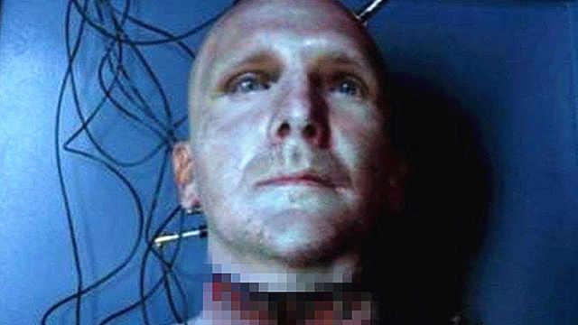 首例人体头移植手术实验模型完成