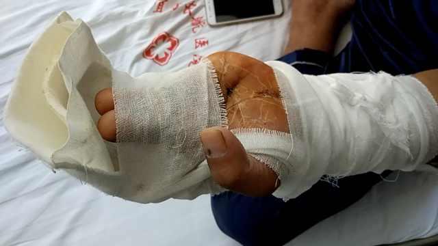 男子4手指齐断,医生巧移2脚趾接上