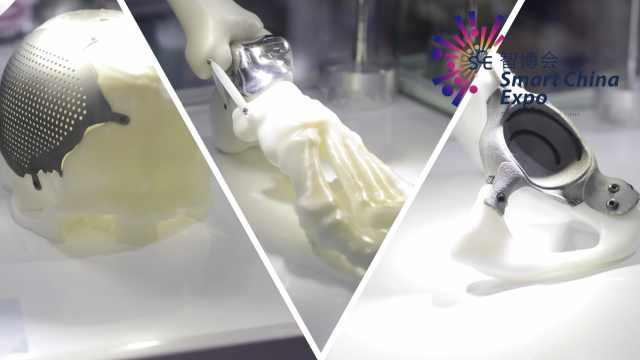 厉害了3D打印!可定制关节修复骨头