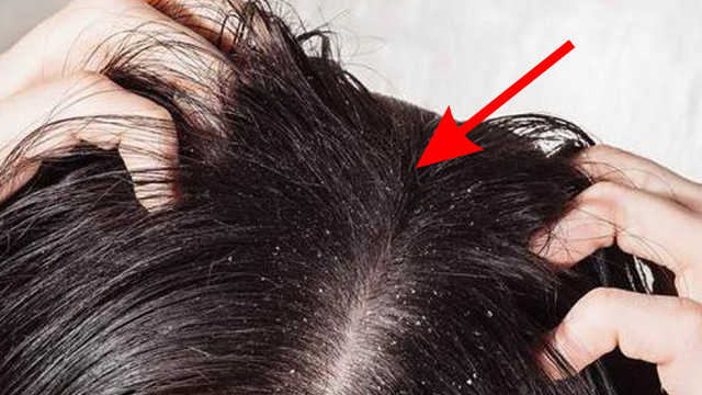 头发1天不洗就很油,是有状况吗?