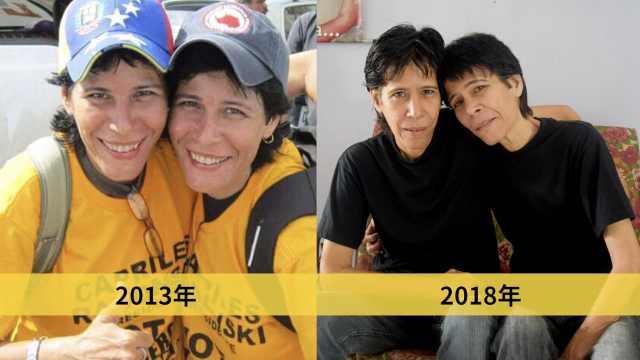 委内瑞拉闹饥荒,女子5年暴瘦80斤
