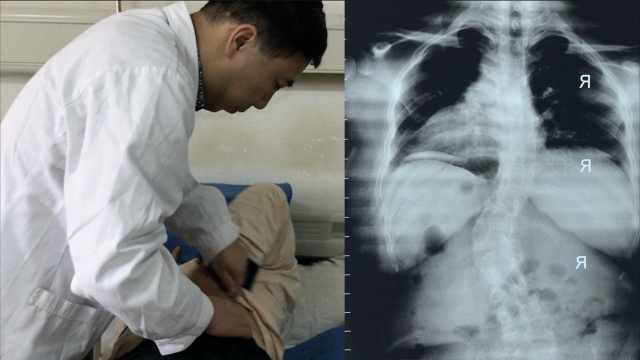 产妇脊柱弯曲40度,29年来竟不知情