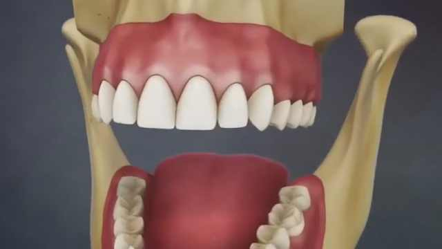 """牙缝里的""""黄泥""""是什么?"""