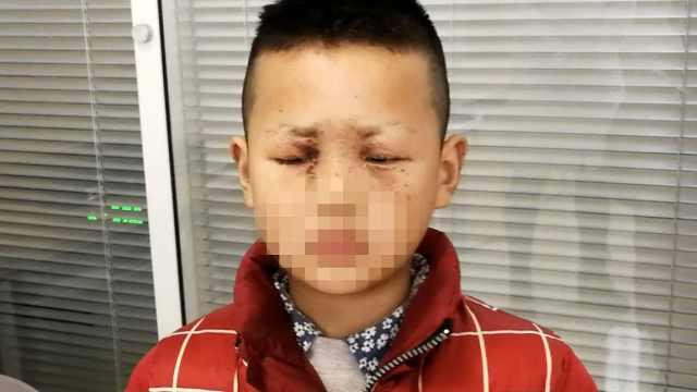 10岁男孩玩鞭炮被炸伤双眼:不玩了
