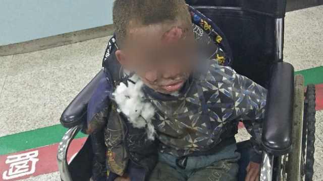 元宵节捡废炮点燃,男童被严重炸伤