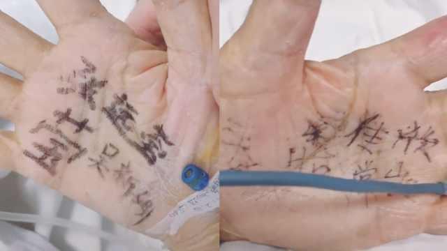 82岁老人住ICU,怕忘护士名写在手心