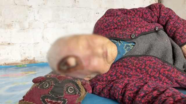 106岁老太磕破头,越抠越破露出白骨