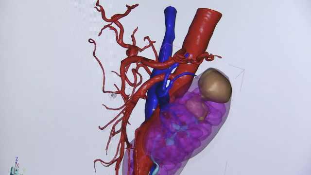 教授研制3D器官技术,获医患点赞