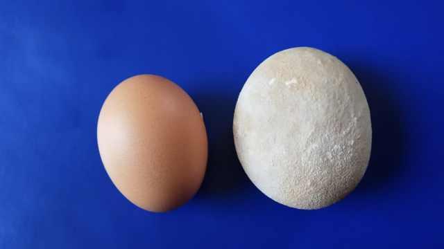 鱼线进膀胱,10年后长成鹅蛋大结石