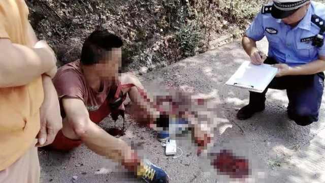 男子被车撞左手臂飞出:自己捡回