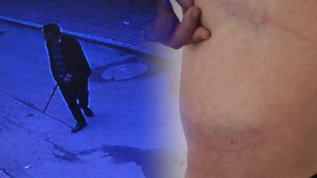 男子曝遭外卖员打,骑手:他要我下跪