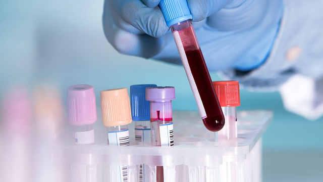 新型血液检测预测脑癌,准确率87%