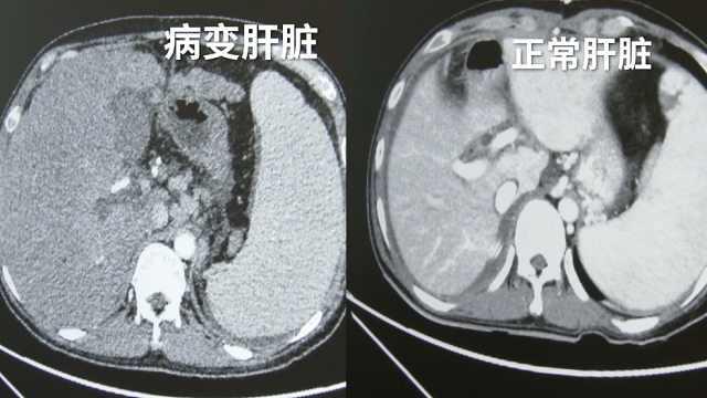 28岁男子查出肝癌晚期,病肝重11斤