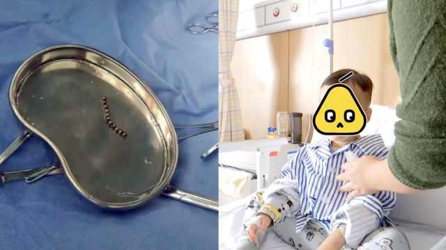 3岁男童误吞磁珠,肠管中取出19颗