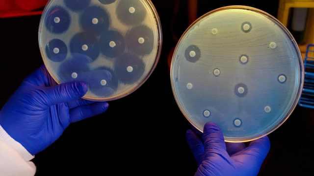 AI首次独立发现史上最强抗生素