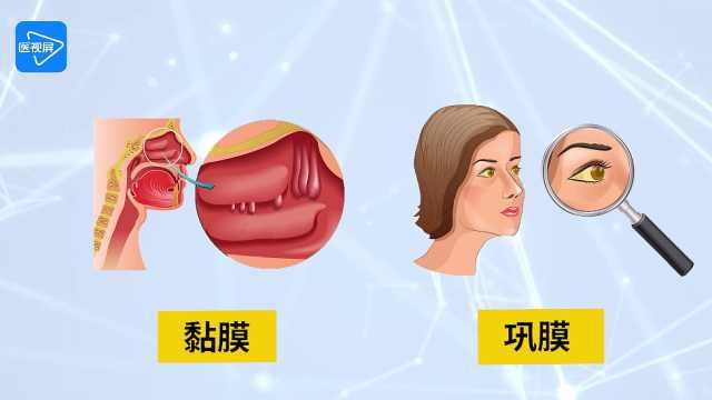 第3节:黄疸的体检要点