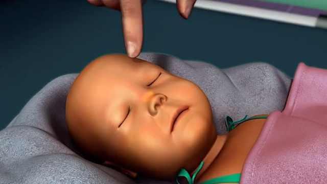 第8节:发生黄疸时,如何诊断为病毒性肝炎?