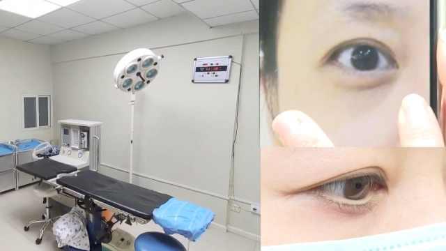 女子称祛眼袋致眼睑外翻,被鉴定为9级伤残,要求赔30万被拒