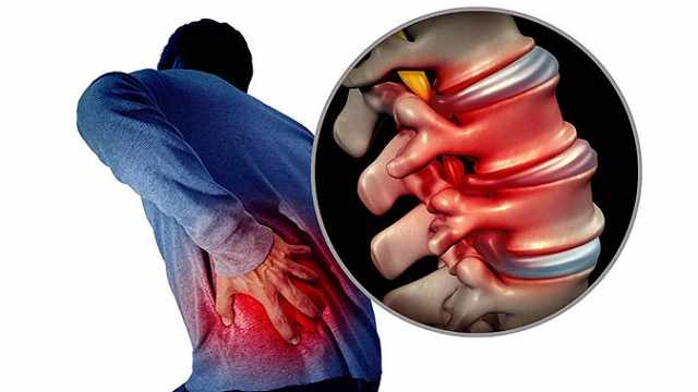 第5节:腰腿痛的选择性检查